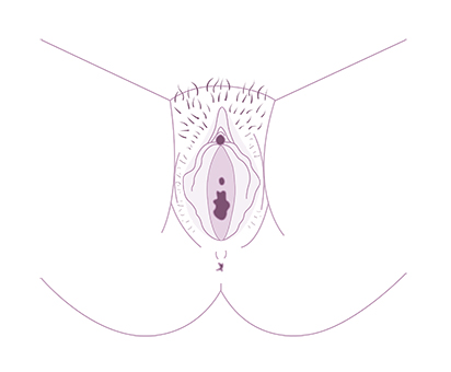 coupe vulve - secheresse vaginale